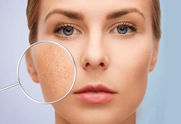 Chăm sóc da từ mật ong se khít lỗ chân lông, làm chỗ chân lông thu nhỏ...