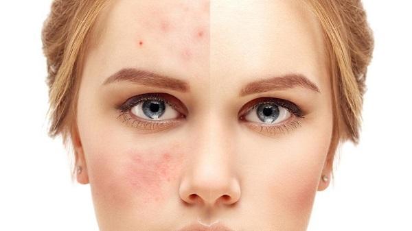 Chăm sóc da với mật ong trị mụn hiệu quả, ngăn ngừa mụn,...